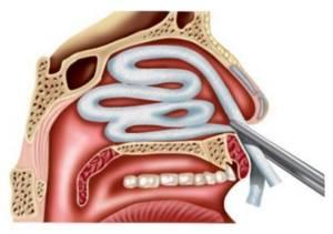Тампонада носа при кровотечении: техника проведения, виды