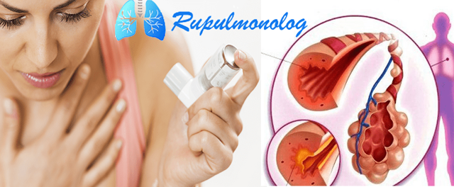 Астматический кашель симптомы, признаки и как лечить такой кашель