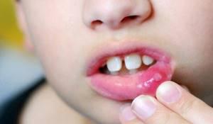 Хлорофиллипт при стоматите - как разводить для полоскания рта и десен