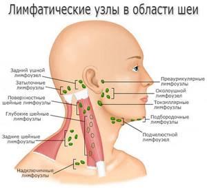 Воспаление лимфоузлов на шее - симптомы, причины, признаки, лечение