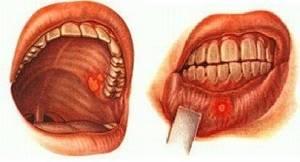 Ангина с язвами во рту - причины появления, диагностика и лечение