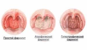 Атрофический фарингит: симптомы и лечение, общие рекомендации