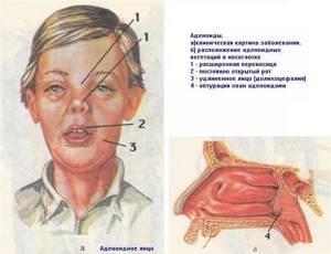 Воспаление аденоидов: симптомы, лечение, степени у детей и взрослых