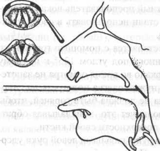 Методы исследования гортани: правила проведения диагностики