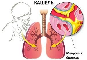 Сухой кашель при беременности - чем лечить кашель при беременности