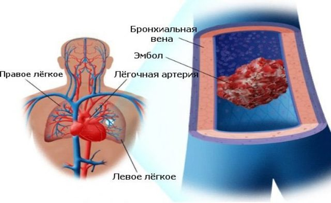 Ощущение кома в грудной клетке причины чувства заложенности