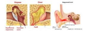 Как быстро восстановить слух после болезни - методы и средства лечения