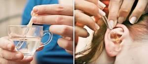 Атерома за ухом на мочке: диагностика, причины, симптомы и лечение