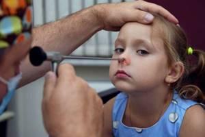 Аденоиды в носу у детей симптомы, как лечат, диагностика