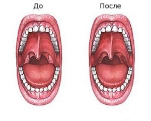 Удаление миндалин при хроническом тонзиллите - поможет ли