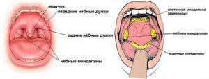 Воспаление миндалин причины, симптомы и методы лечения