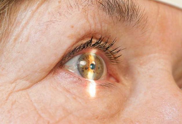 Капли Cipromed 0.3%. Способы применения, дозировки, противопоказания
