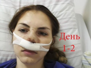 Выпрямление носовой перегородки - способы исправить дефект