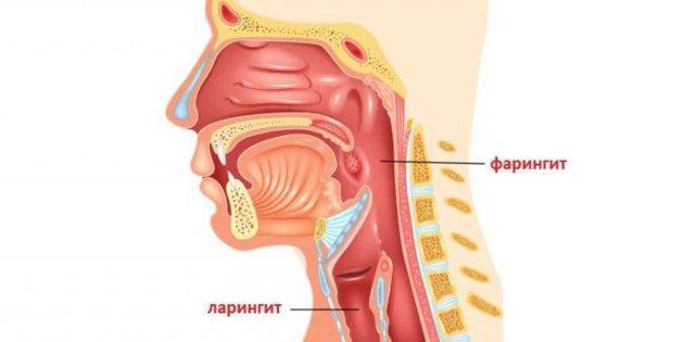 Чем отличается ларингит от фарингита - методика лечения болезни