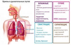 Хрипы в легких и их виды, лечение хрипов влегких, лечение