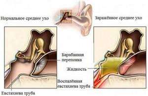 Мазь для ушей левомеколь при отите и отомикозе, инструкция