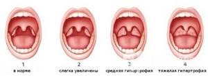 Острый и хронический аденоидит - симптомы и лечение