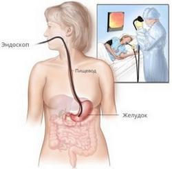 Боль в горле при глотании может быть симптомом ряда заболеваний