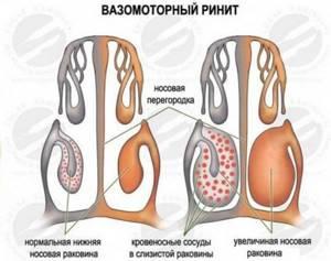 Конхотомия - прижигание сосудов в носу лазером и суть метода