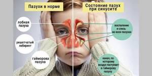 Почему у ребенка закладывает ночью нос: методы лечения