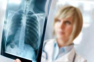 Болезни легких у человека список, причины, симптомы и лечение