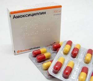 Бактериальный фарингит симптомы и лечение, методы лечения