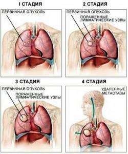 Причины появления спазмов и удушья в горле: основные симптомы