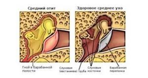 Антибиотики при отите среднего уха у малыша, антибиотики при отите у взрослых