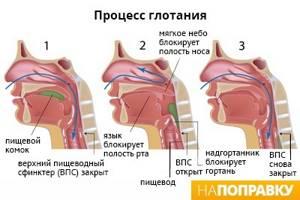 Нервная дисфагия лечение
