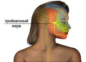 Воспаление тройничного нерва - признаки, симптомы и лечение