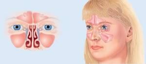 Двухсторонний синусит симптомы и лечение, меры профилактики