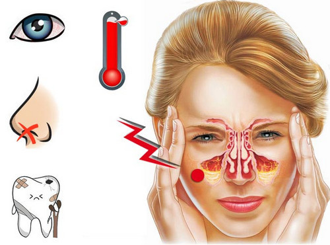 Как избежать гайморита при насморке на ранней стадии