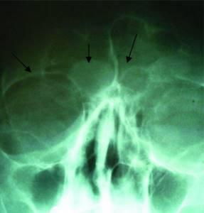 Киста в носовой пазухе симптомы, удаление и лечение без операции