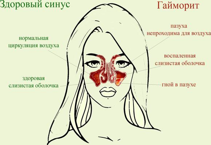 Сухой ринит - симптомы и особенности болезни, лечение