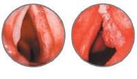 Симптомы и проявление плоскоклеточного рака гортани: лечение