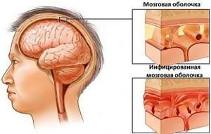 Гнойный гайморит: лечение и симптомы