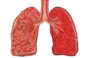 Атипичная пневмония симптомы, у взрослых, лечение, признаки