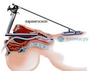 Дисфония или афония гортани - лечение народными средствами