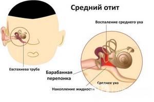 Острый средний отит - причины, симптомы, диагностика и лечение
