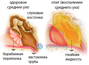 Из уха течет жидкость прозрачная, желтая - патология