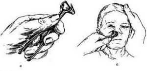Эндоскопическая риноскопия носа передняя, средняя, задняя