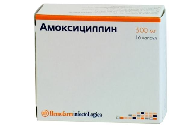 Гнойники на миндалинах лечение, причины и фото