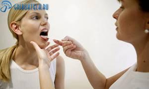 Фарингомикоз - основные симптомы заболевания и клиническая картина