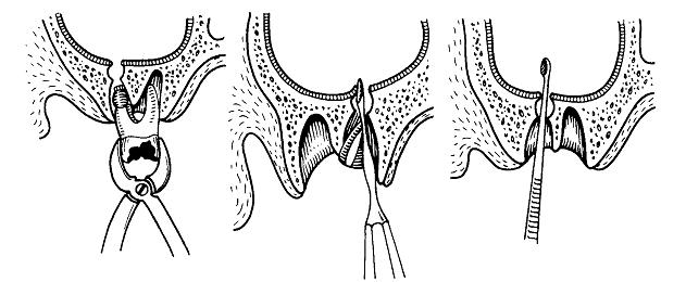 Перфорация и свищ гайморовойверхнечелюстной пазухи: причины