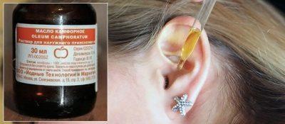 Камфорное масло в ухо: инструкция по применению при отите и болях у детей, варианты компрессов