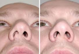 Септопластика носа лазерная, эндоскопическая, резекция