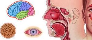 Аллергический гайморит - главные шаги на пути к выздоровлению