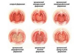 Болит горло симптомы