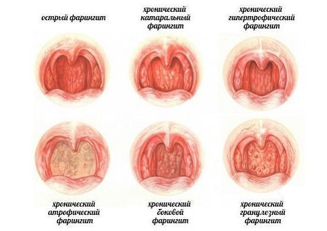 Болезни глотки и гортани
