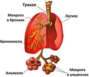 Можно ли вылечить ангину без антибиотиков: общие рекомендации